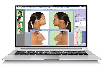 Nextech EMR Photo Management Software