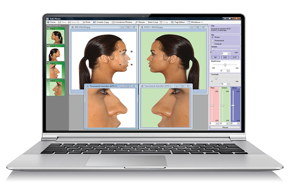 Nextech EMR Photo Management Software
