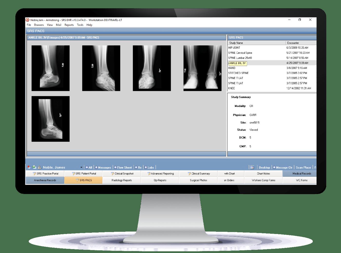 Orthopedics EHR PACS Integration